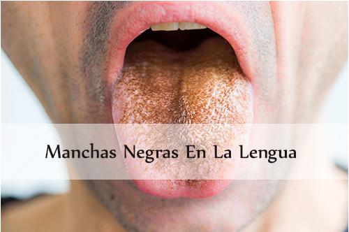 Manchas negras en la lengua